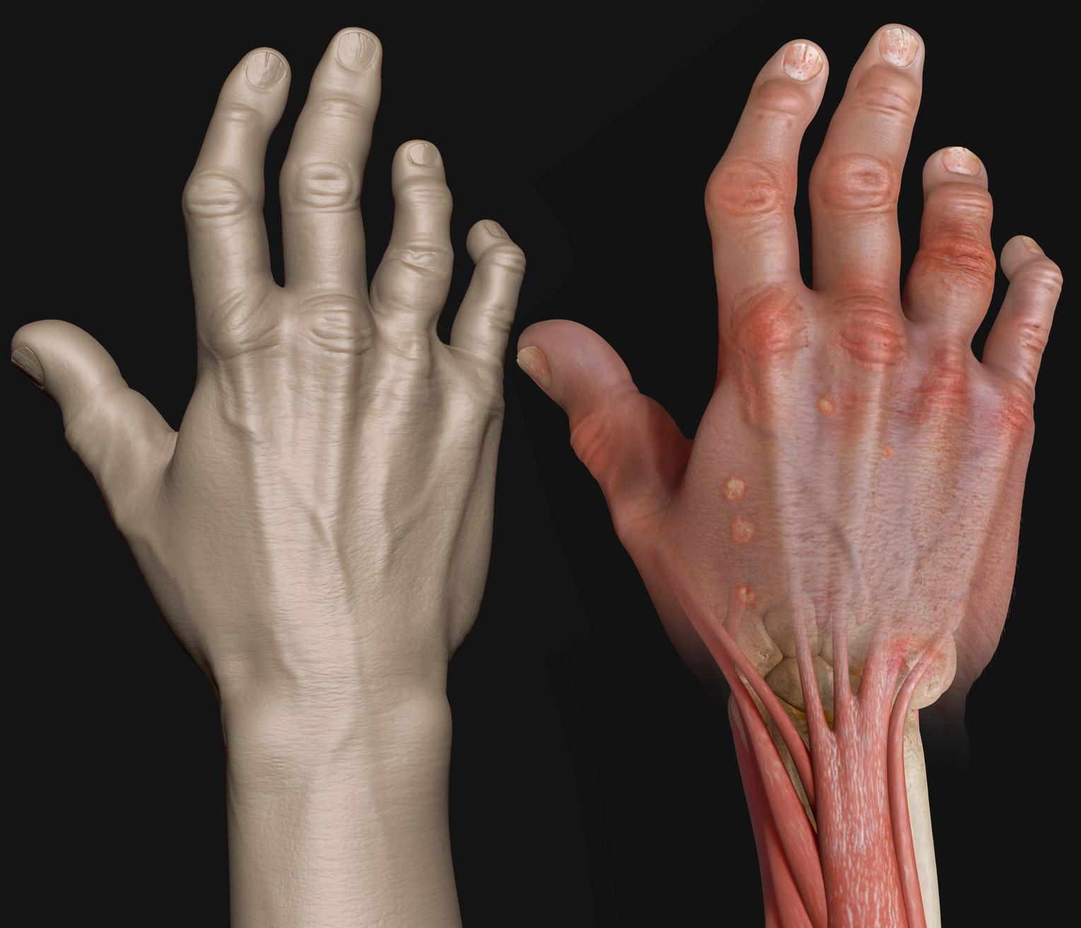 Artstation Psoriatic Arthritis And Hand Studies Eric Pochat