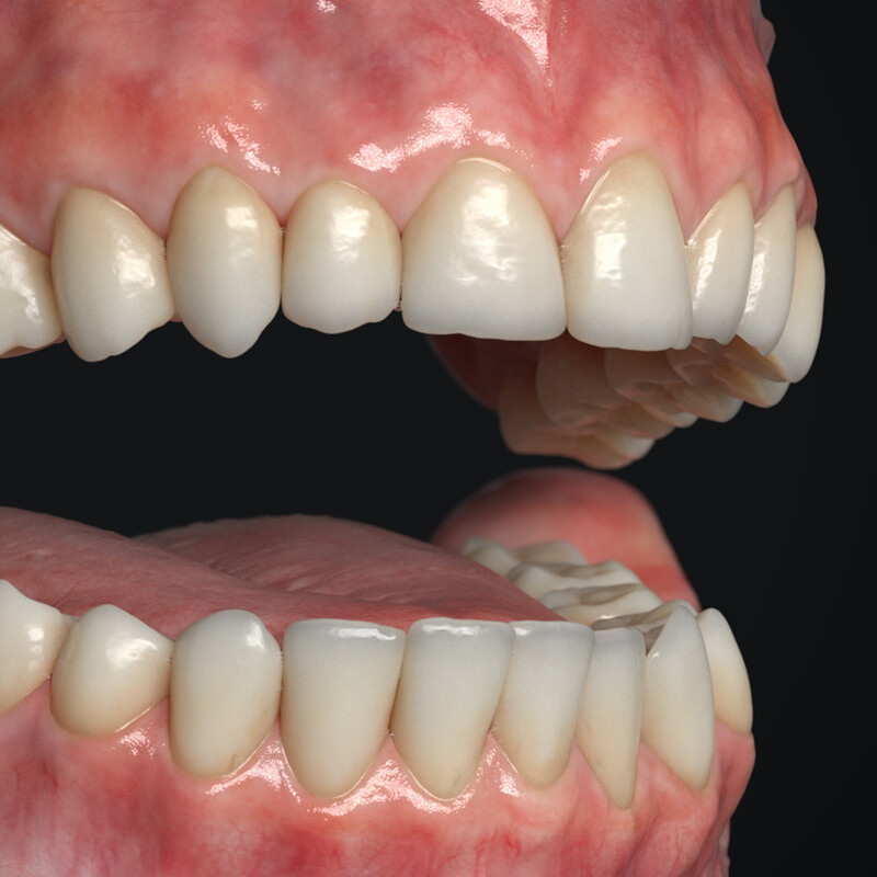 Teeth Asset