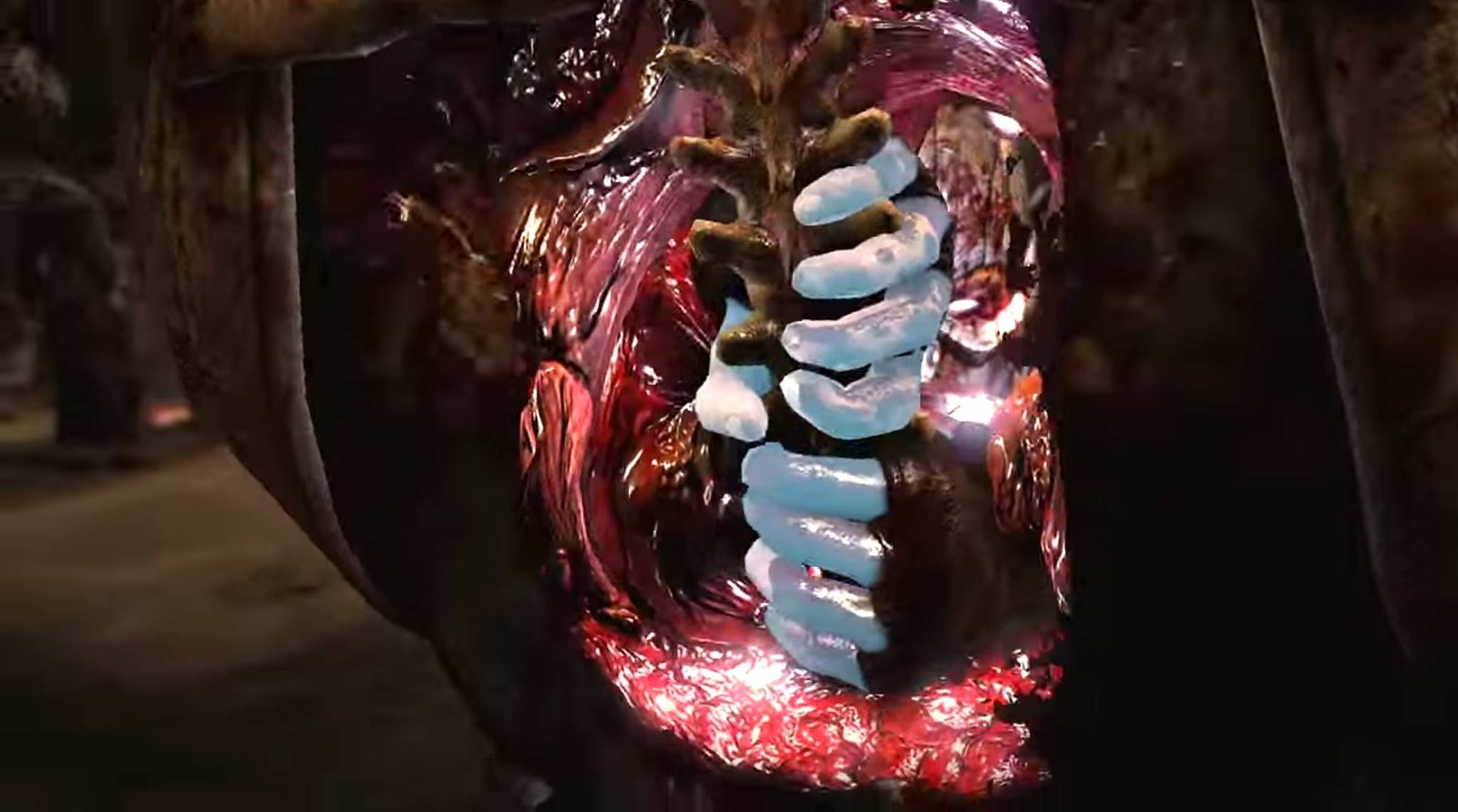 I did the chest cavity sculpt (not spine)