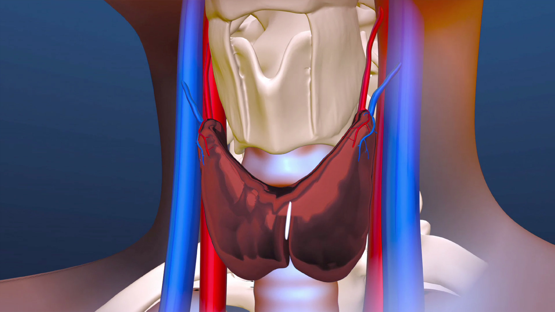 Still from an animation I created showing a new surgical technique