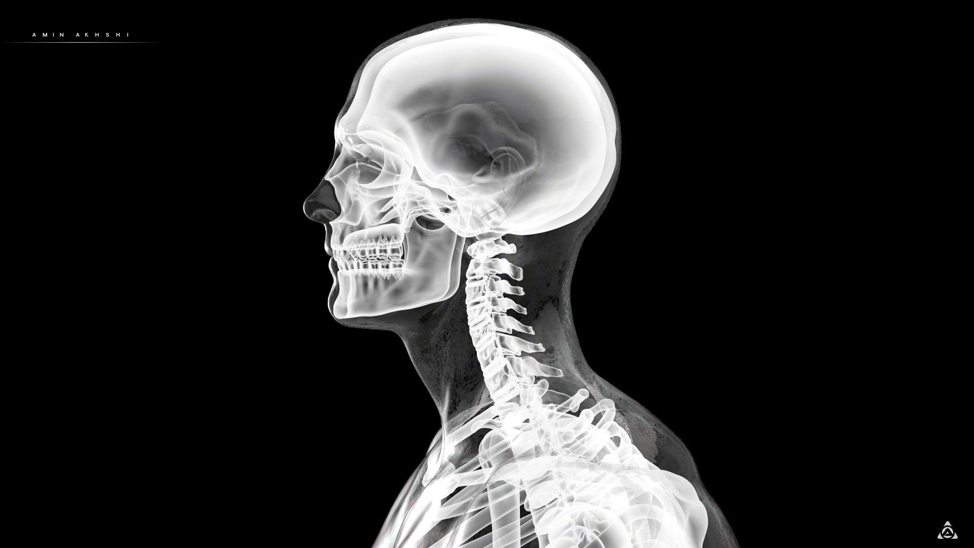 Amin akhshi anatomy x ray side