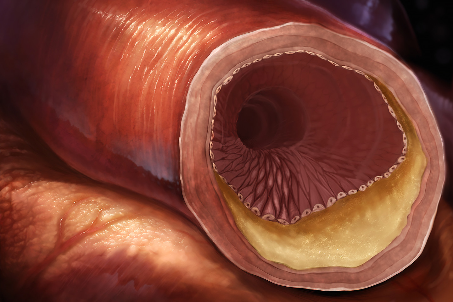 Cholesterol buildup in artery concept