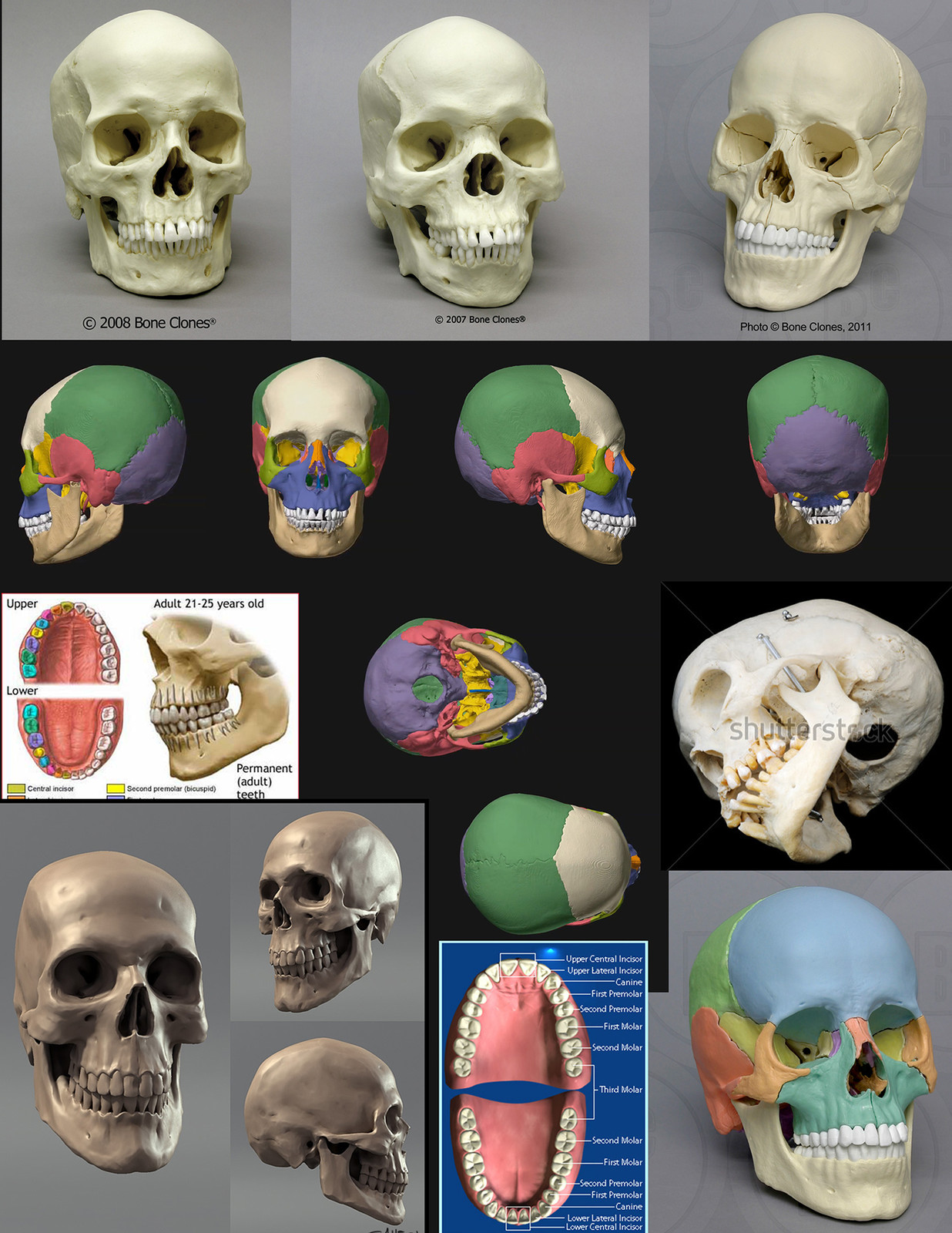This is the refs collection  I used.  Images from boneclones.com, medical websites, and one digital skull from an artist that I unfortunately can't find anymore and would like to credit for the image here.