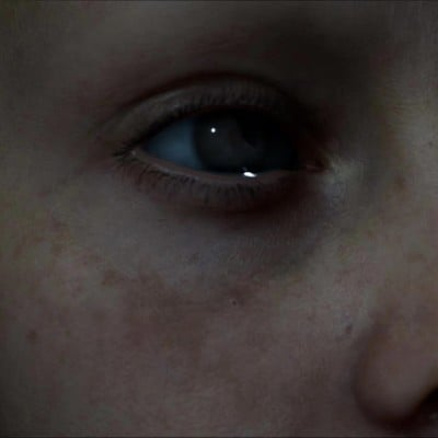 ue4 skin test form emily