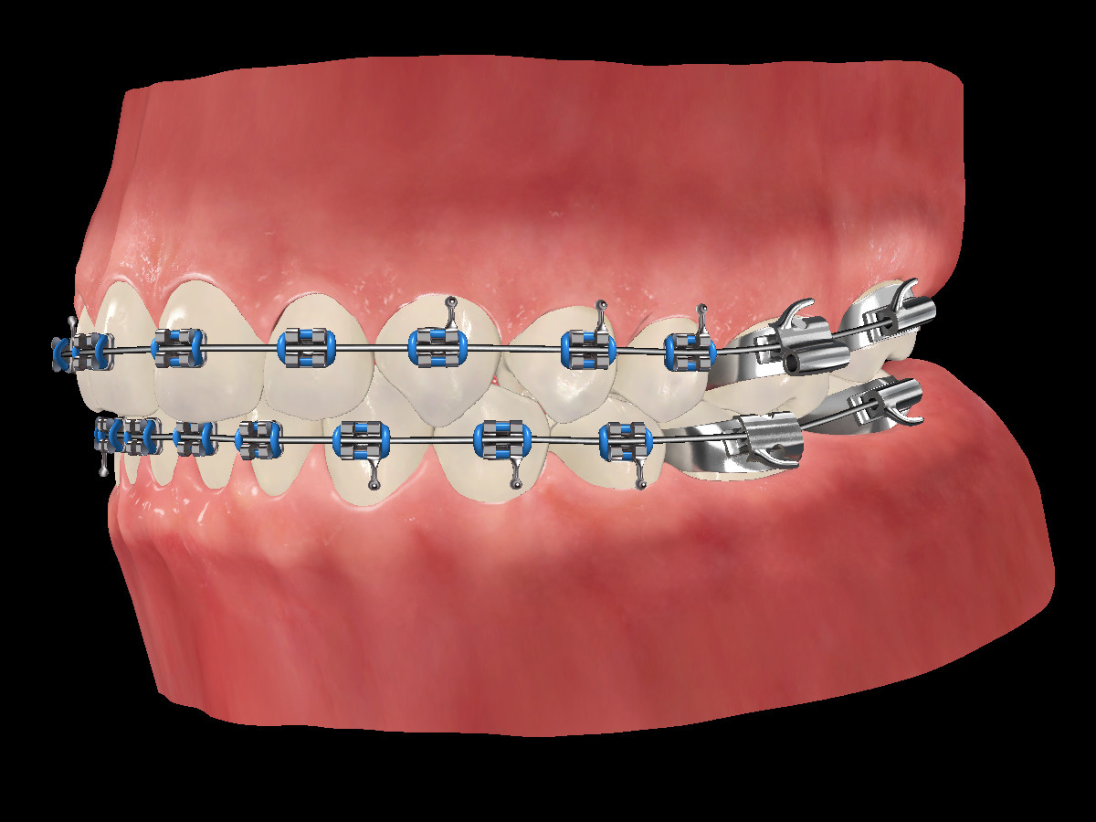 Ken calvert teeth side