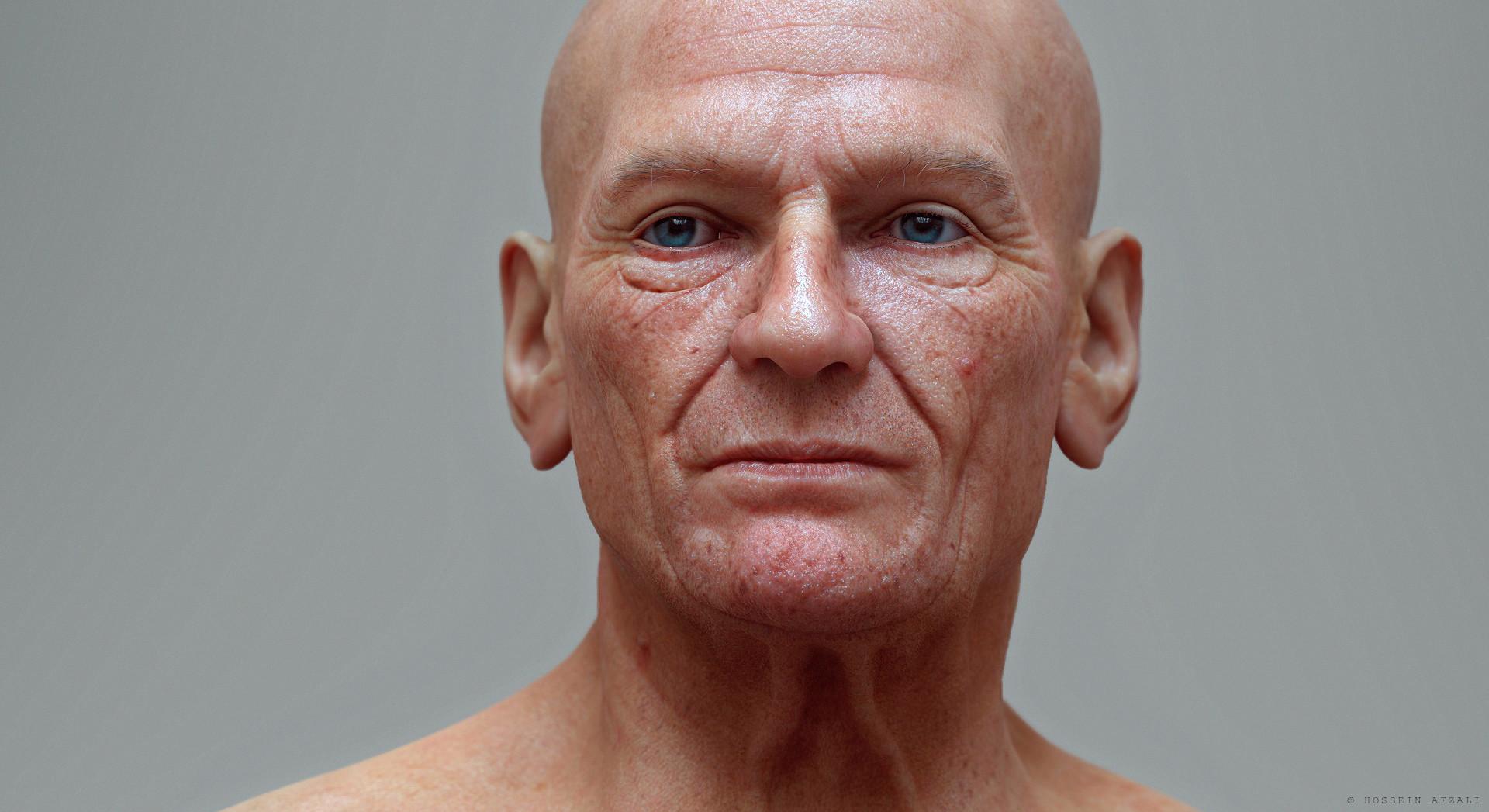 deformed face man - 944×745