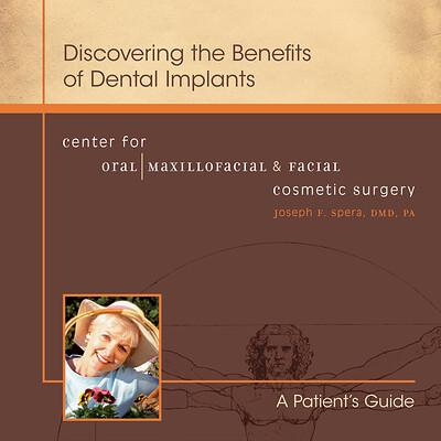 Dr. Spera Implant Brochure