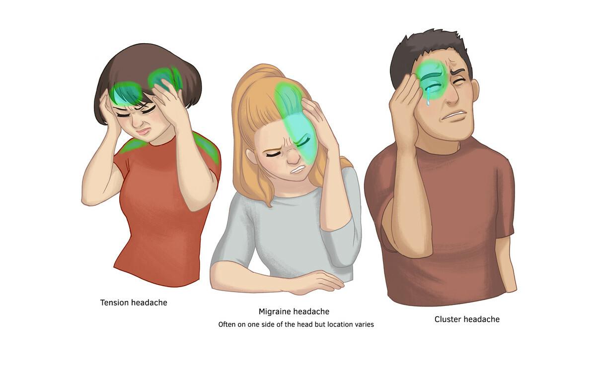 Vikki ong 661634 nu024 headache img1