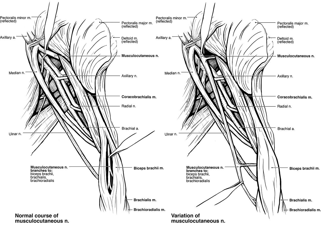 Variations of the Musculocutaneous Nerve