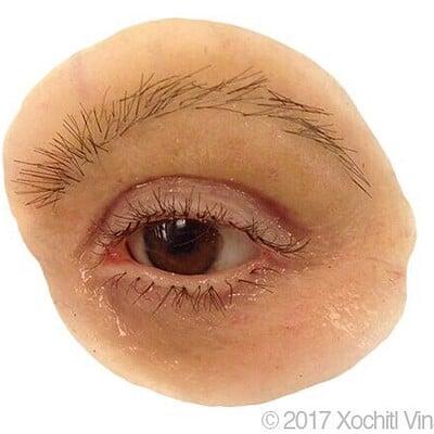 Ocular and Orbital Prostheses