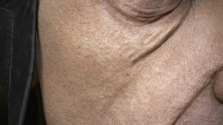 skin details closeup