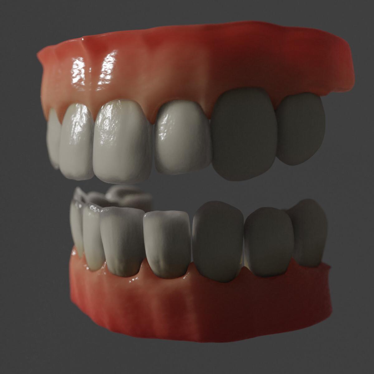 Teeth & Gums    (cycles)