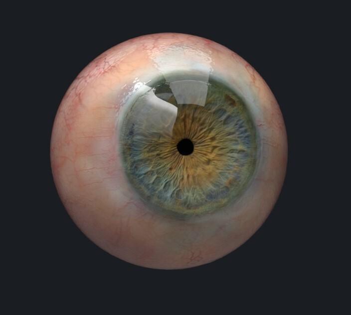 Chingiz jumagulov eye version6
