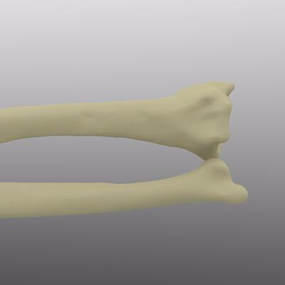 Rino glod bonesurgery 01