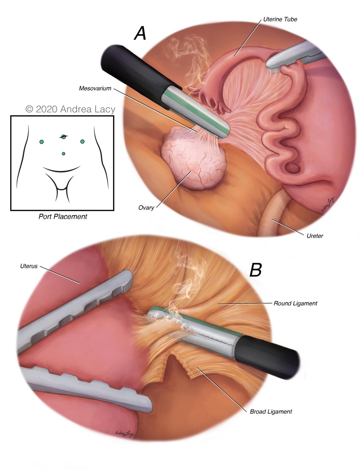Laparoscopic Hysterectomy-Surgical Series