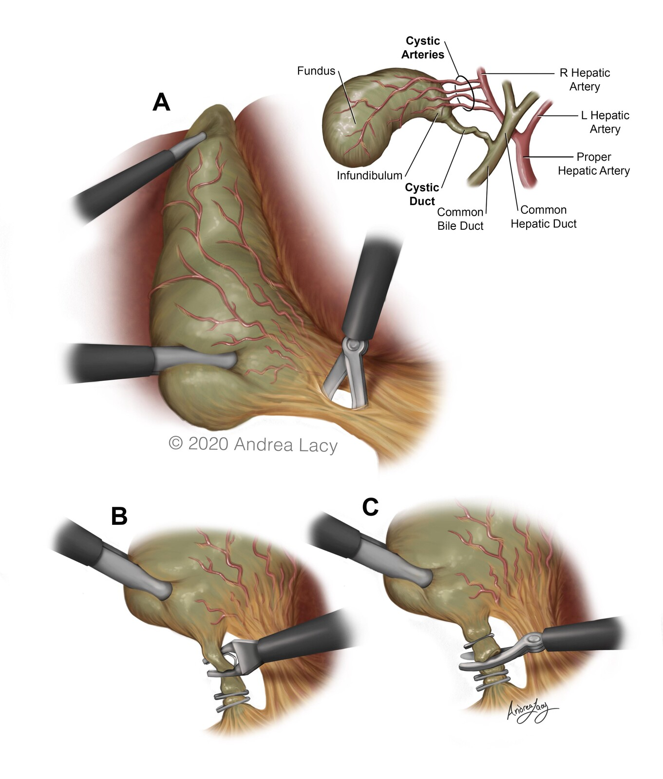 Cholecystectomy-Surgical Series