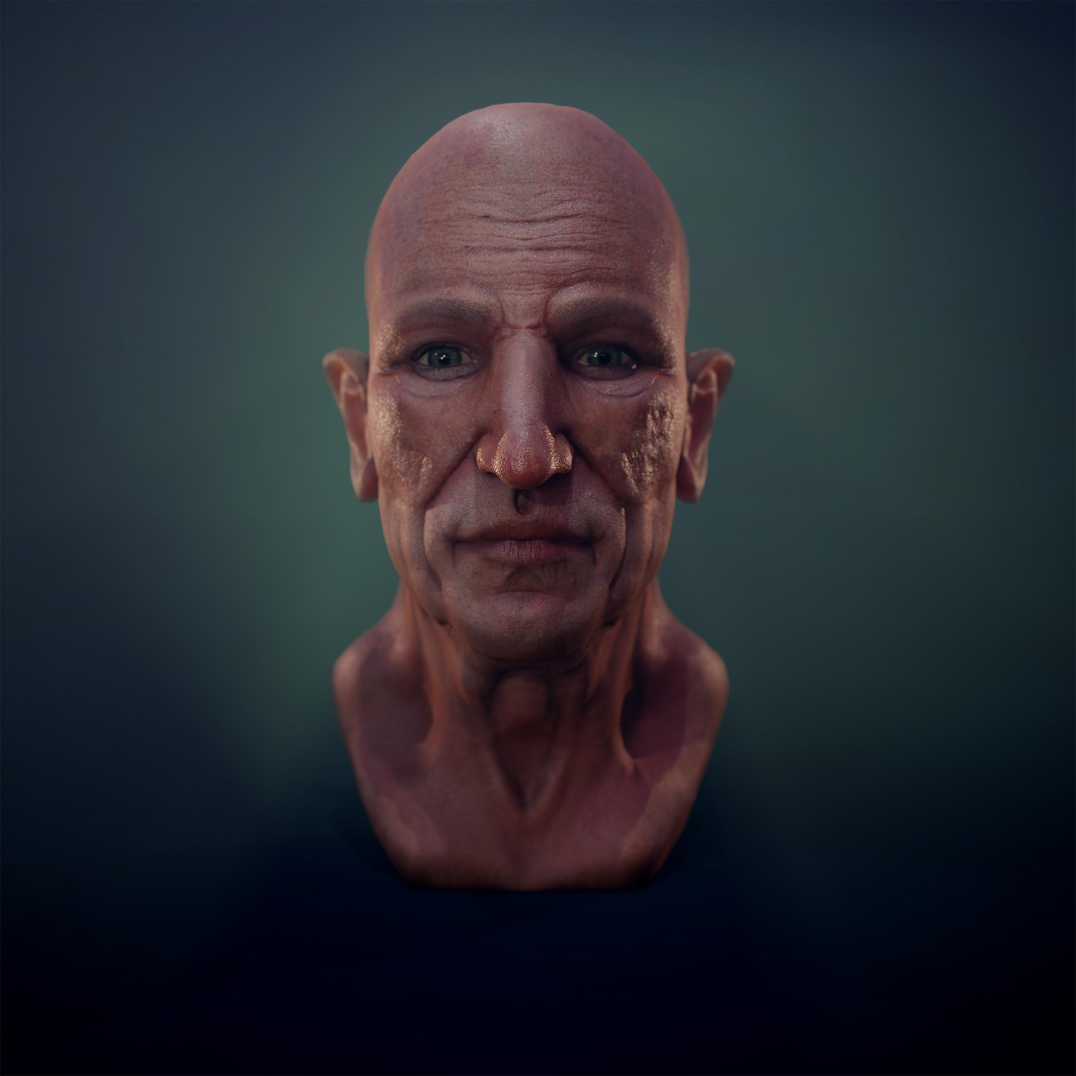 Elderly Facial Anatomy