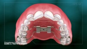PEDIATRIC PALATAL EXPANDER - Rig Test